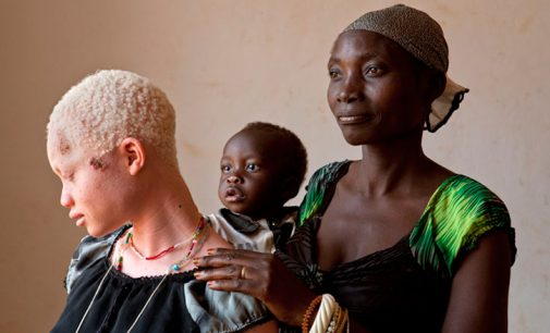 The Struggle For Social Inclusion of People With Albinism